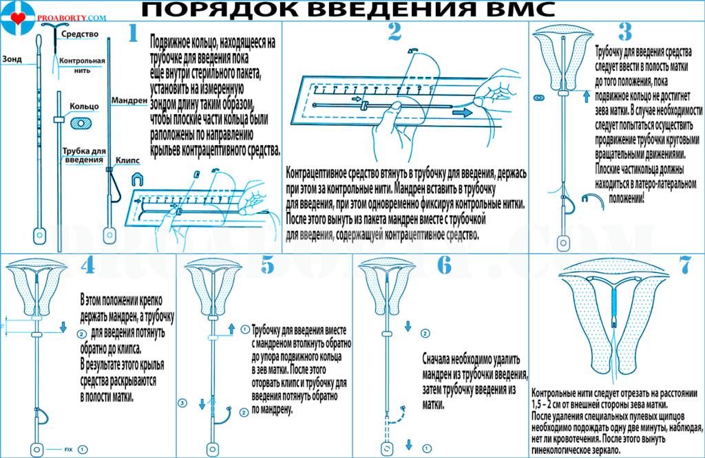 Подробная инструкция введения ВМС таблица картинка