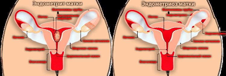 Эндометрит и эндометриоз в половой системе женщины