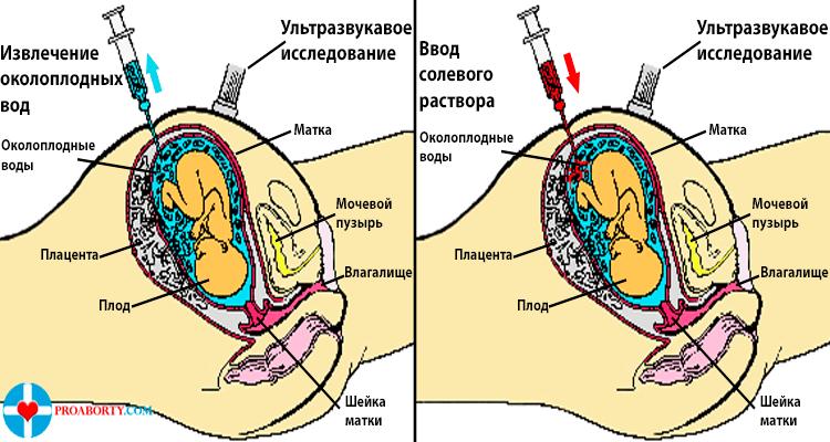 Солевой аборт при беременности